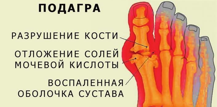 меню для лечения подагры